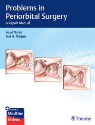 Problems in Periorbital Surgery